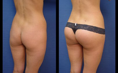 augmentation fesse tunisie