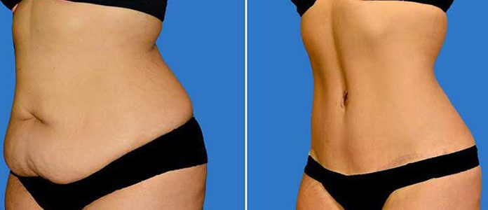 Abdominoplastie-liposuccion